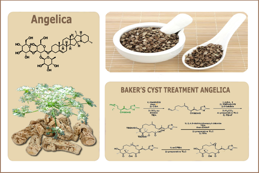 Natural Cure for Baker's Knee Cyst B-Relief Capsules Angelica INFO: bakerstreatment.com