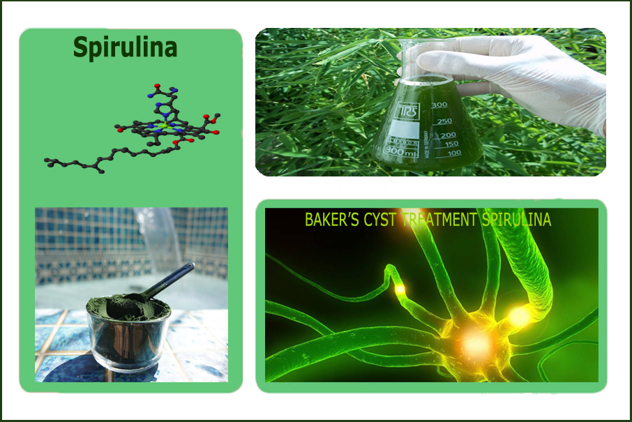 B-Relief-Natural-CURE-for-Baker's-Cyst,-Spirulina Alternative-to-the-Baker's-Cyst-Surgery.-INFO-bakerstreatment.com
