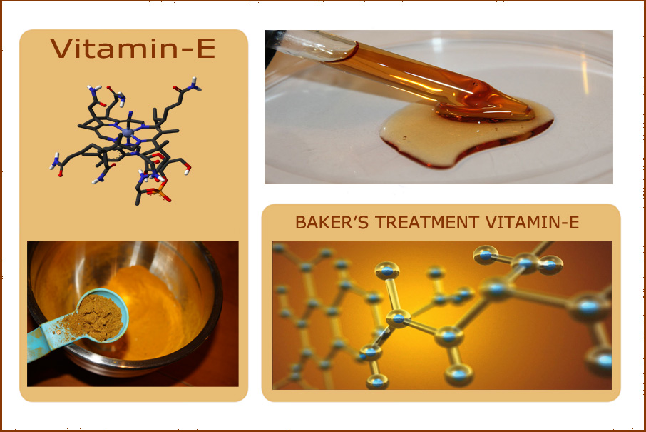 B-Relief-Capsules-Ingredients--Vitamin E-INFO-bakerscyst.com