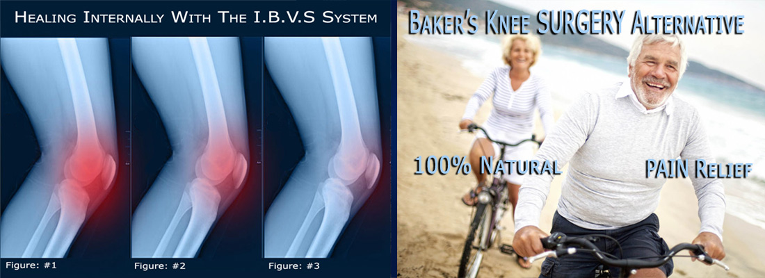 B-Relief Caps Baker's Knee surgery alternative