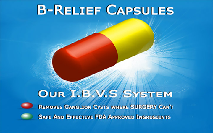 Removing Baker's Knee Cysts SURGERY-Alternative-B-Relief-Caps-