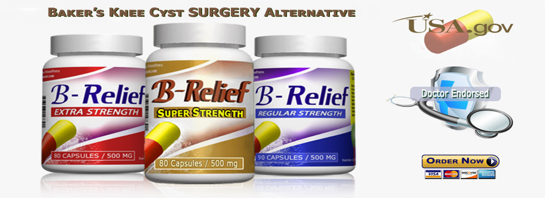 Baker's Knee Cyst SURGERY Natural Alternative B-Relief SUPER Caps: INFO bakerstreatment.com